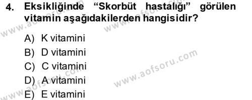 Çocuk ve Ergen Bakımı Dersi 2013 - 2014 Yılı Dönem Sonu Sınavı 4. Soru
