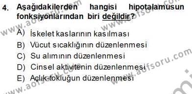 Çocuk Ruh Sağlığı Dersi 2013 - 2014 Yılı (Final) Dönem Sonu Sınav Soruları 4. Soru